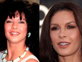 25 Shocking Photos Of Celebs Before & After Dental Work